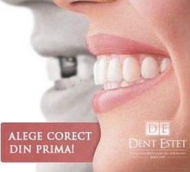 Adevarat sau fals: Mituri despre implantul dentar