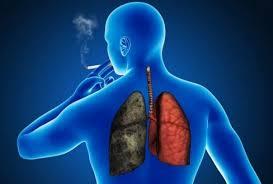 Scadere in greutate, raguseala, tuse cu sange, simptome ale cancerului pulmonar